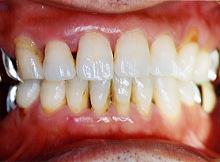 歯周病症例集2治療後写真