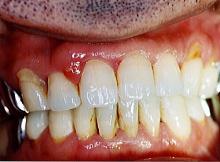 歯周病症例集2治療前写真