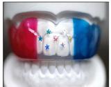 スポーツ歯科マウスガード